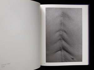 Miyako Ishiuchi: Scars +  Yokosuka Story; Apartment; Endless Night; 1947; 1906 to the Skin; Mother's