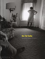 Eugene Richards: The Fat Baby